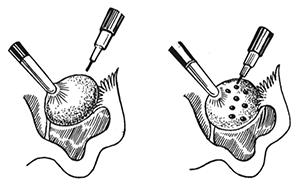 Лапароскопия кисты яичника особенности подготовки проведения и реабилитации