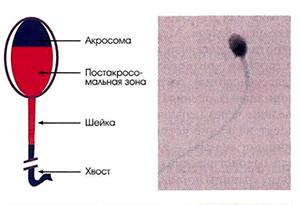 Лечение мужского бесплодия в Москве
